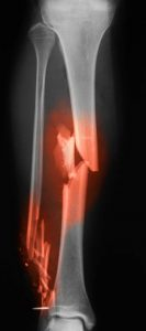 Broken leg x-rays image showing tibia and fibula fractures.